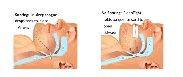 Sleeptight Mouthpiece How it works