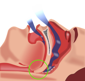 sleep apnea dangers